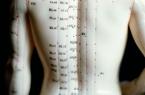 Akupunktur/Ohrakupunktur